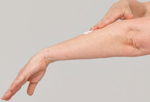 shingles cream application